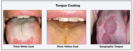 Coating on tongue bad breath